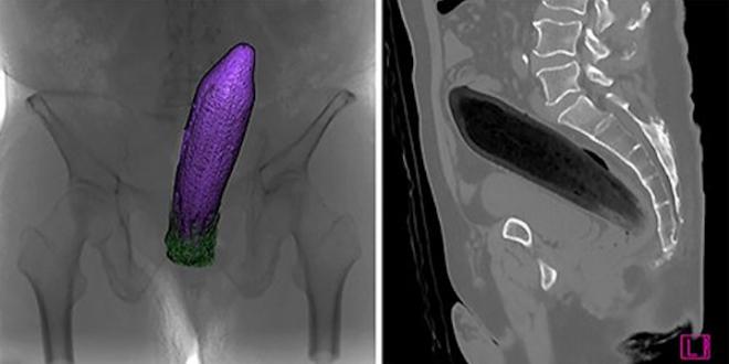 aubergine-rectum.png.b5e54b951c33fa2cf1f893e3346c7f44.png