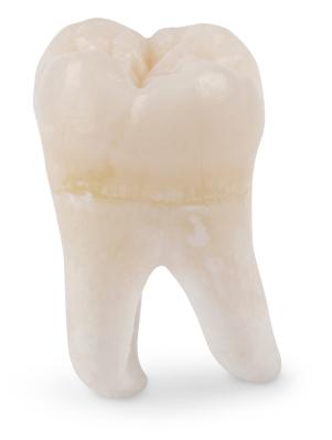 best_budapest_dentist_wisdom_tooth_extraction.jpg.4d746d2f6d58eb3e63f764ebb3dd1678.jpg